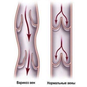 Один из патогенетических факторов развития заболевания – несостоятельность венозных клапанов