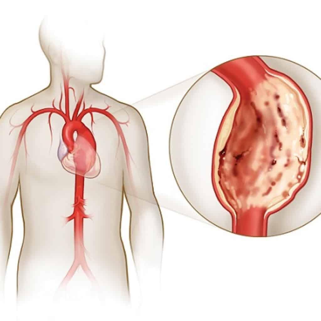 Выделяют ряд характерных симптомов аневризмы