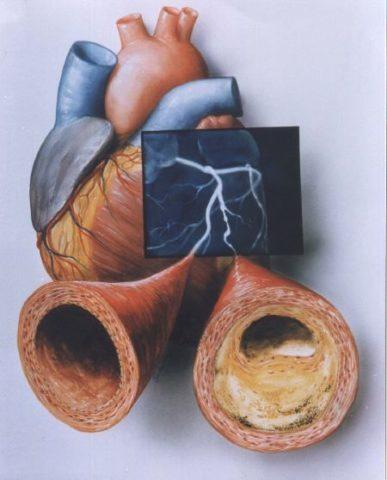 Атеросклеротическое поражение сосудов сердца, как действовать.