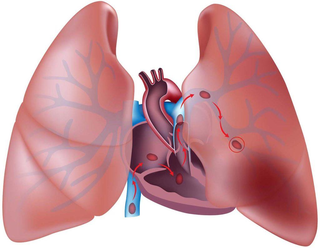 Тромбофлебит легких: основные симптомы
