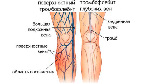 Варикозная болезнь – самая частая причина тромбоза легочных сосудов