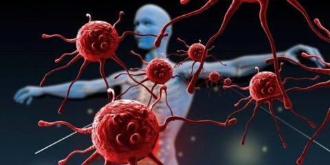 Аутоиммунные реакции при варикоцеле вызывают уничтожение собственных сперматозоидов