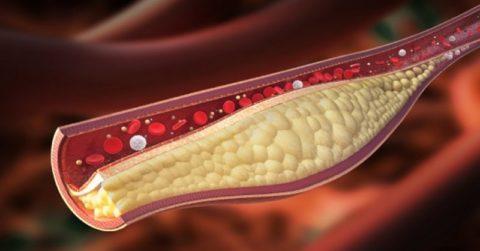 Бляшки способны нарушить кровоток полностью