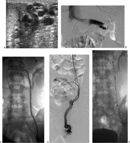 Фото некоторых этапов проведения эмболизации