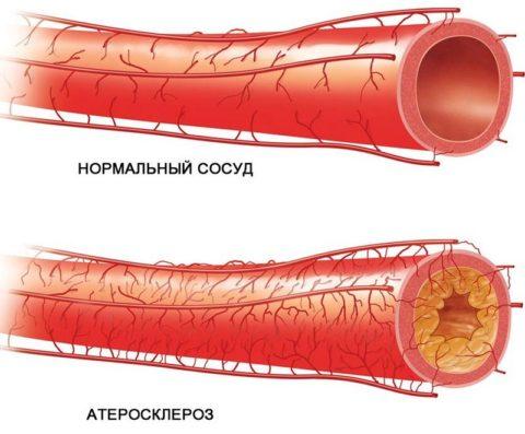 Холестериновые бляшки могут почти полностью закупоривать артерию, нарушая нормальное кровоснабжение