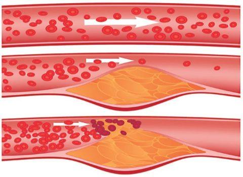 Подобные образования способны значительно сузить просвет артерии