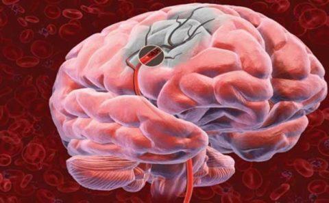 При инсульте ткани подвергаются некрозу