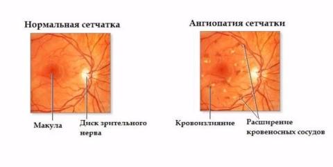 Как изменяется сетчатка при развитии заболевания