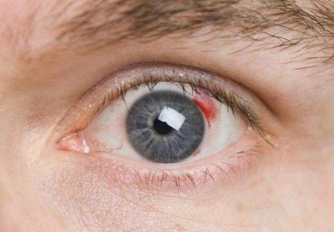 Кровоизлияние как симптом атеросклероза