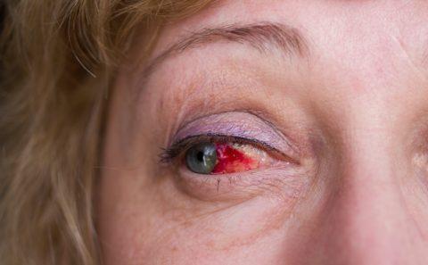 Кровоизлияние в глазницу