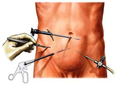 Лапароскопическое лечение варикоцеле