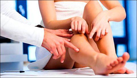 Лечение варикозного расширения вен нужно начать с консультации флеболога.