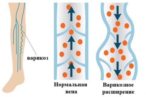 Любой варикоз происходит по причине неправильной работы венозных клапанов