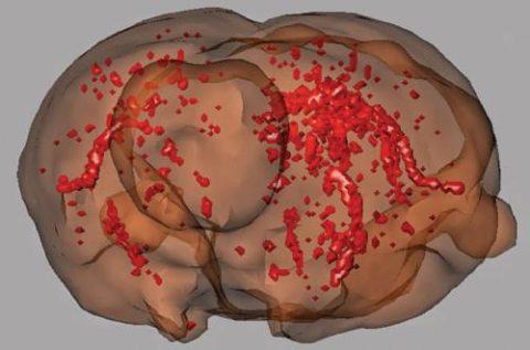 Медикаментозное лечение склероза сосудов головного мозга обеспечивает полное выздоровление пациента