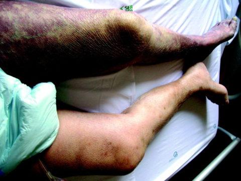 Пациент с влажной гангреной левой ноги