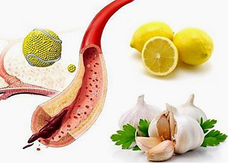 Народные рецепты чистки сосудов от холестерина