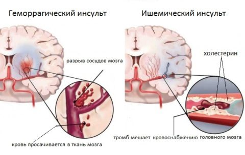 Последствия больных сосудов мозга