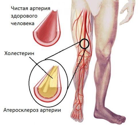При атеросклерозе УЗДГ позволяет оценить степень сужения сосудов