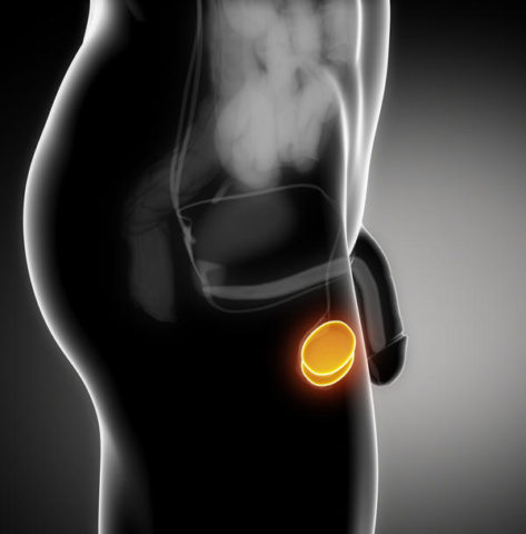 При варикозе на одном яичке сперматогенез нарушается в обоих из-за повышения температуры