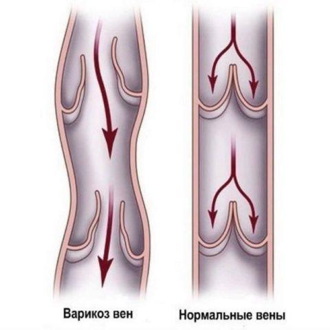При патологии нарушается ток крови, возникает ее регургитация