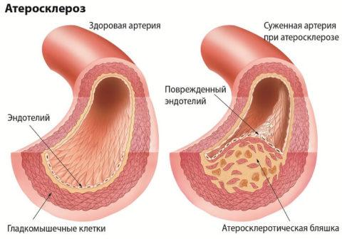 Пример того, что происходит с сосудами при развитии атеросклероза