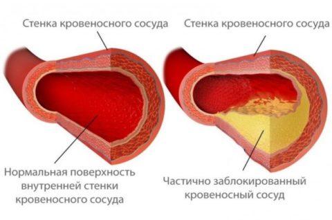 Справа кровообращение значительно страдает