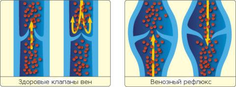 Работа венозных клапанов в здоровом и варикозном сосуде