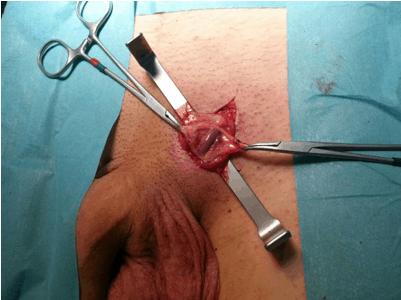 Рассечение подкожной клетчатки при помощи ретракторов