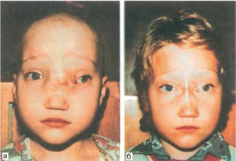 Ребенок с назоорбитальной грыжей