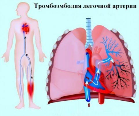 С током крови тромб движется по сосудам и может закупорить просвет легочной артерии