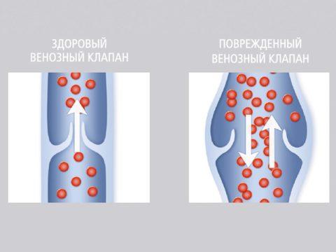 Схематическое изображение правильной и неправильно работы венозных клапанов