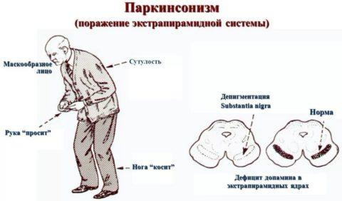 Синдром Паркинсона