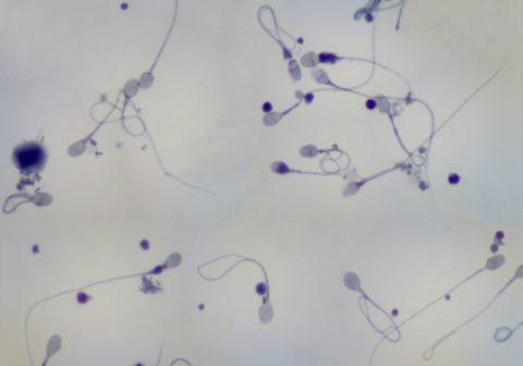 Сперматозоиды человека