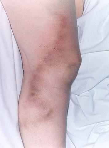 Тромбофлебит — частое и очень опасное осложнение