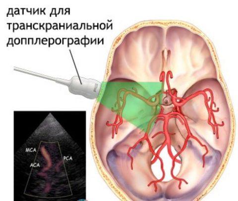 Цветовое дуплексное сканирование сосудов мозга