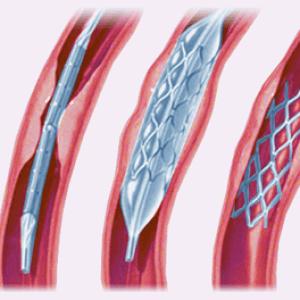 Установка катетера в месте атеросклеротического поражения