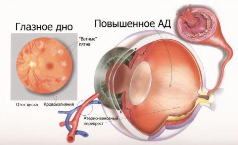 Ангиопатия по причине гипертонической болезни