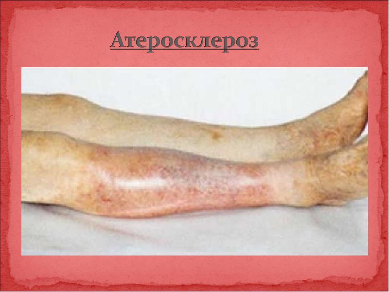 Атеросклероз – обменное нарушение, вызванное избытком холестерина в организме