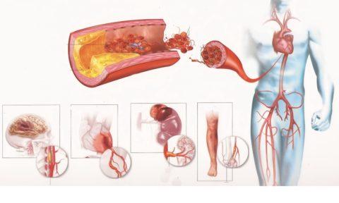 Атеросклероз способен поражать все внутренние органы (см. фото)