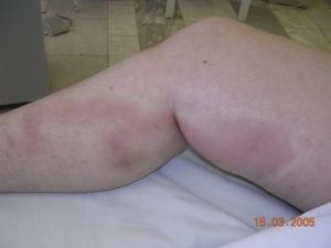 Боль в мышцах, особенно во время ходьбы