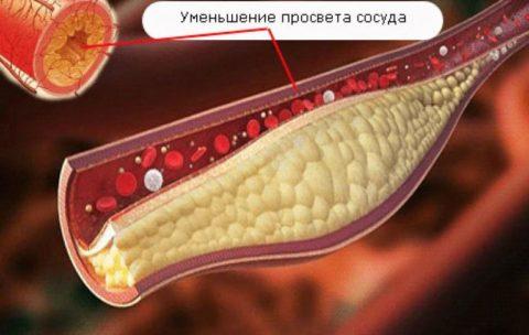 Что происходит при отложении липопротеинов?
