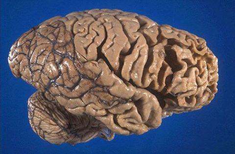 Дегенерация нервной ткани