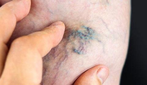 Фото: Как выглядит тромбофлебит