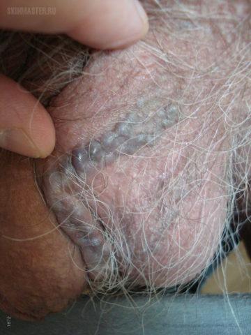 Фото варикоза в мошонке