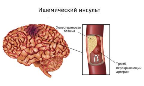 Инсульт – одно из последствий спазма