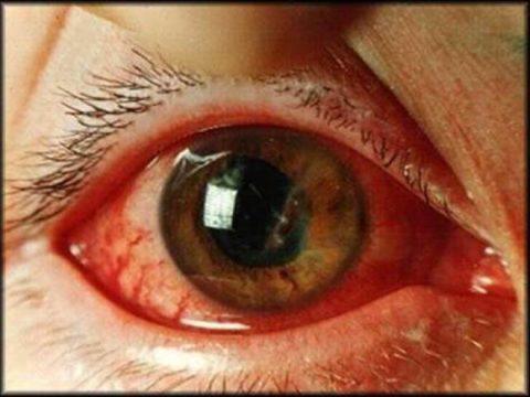 Кровоизлияние при острой форме глаукомы