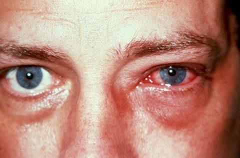 Кровоизлияние в капилляры