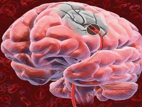 Недостаточное кровоснабжение мозга