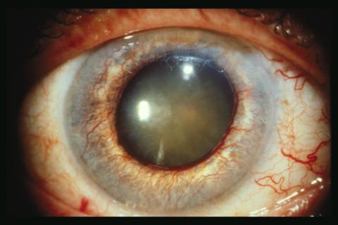 Глаукома - одно из осложнений