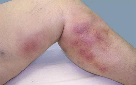 Покраснение и болезненность места локализации сгустка крови. Боль ощущается и во время движения